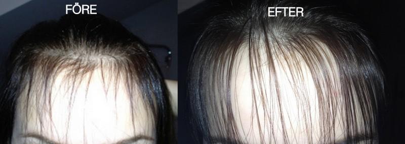 extremt tunt hår